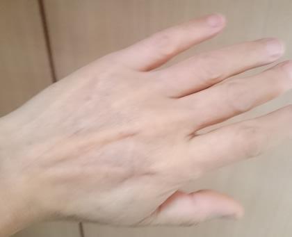 myhands